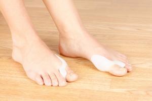 L'oignon du pied, appelé également Hallux Valgus traité en Ostéopathie à Argenteuil