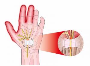 Syndrome canal carpien, douleurs poignets et mains, symptômes soulagées au Cabinet d'Ostéopathie à Argenteuil (95)