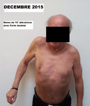 Soulager vos douleurs d'épaule ou tendinites de la Coiffe des rotateurs en Ostéopathie